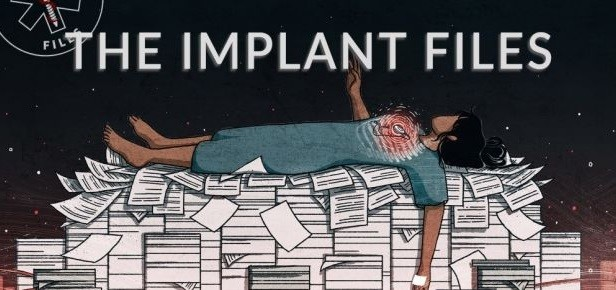 IMPLANT FILES - Un scandal sanitar mondial arata ca 82.000 de oameni ar fi murit in SUA din cauza lacunelor in controlul implanturilor medicale