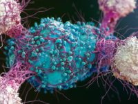 Descoperire revolutionara! Un nou tip de celula T ar putea reprezenta tratamentul universal impotriva cancerului