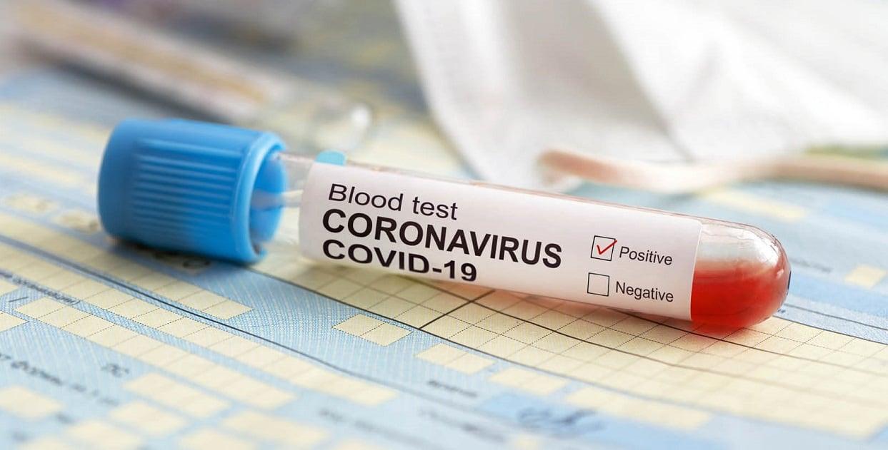 China ar fi impus restrictii la publicarea unor lucrari de cercetare privind originile noului coronavirus
