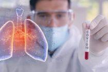 Creste numarul cazurilor de coronavirus in Romania, s-a inregistrat cea mai ridicata cifra de la inceputul relaxarii masurilor