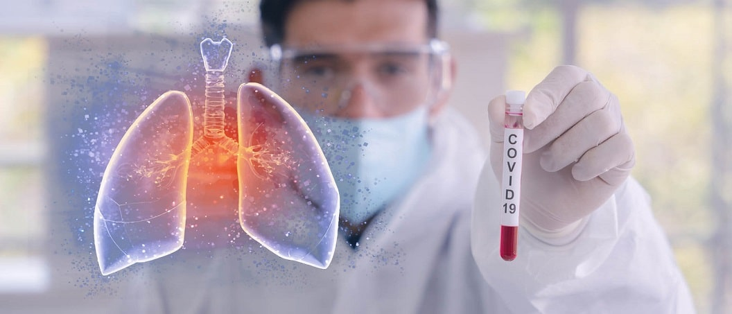 Bilantul deceselor din cauza COVID-19 in Romania a ajuns la 318. Printre dintre ultimele cazuri, un barbat recent intors din Marea Britanie, fara boli asociate
