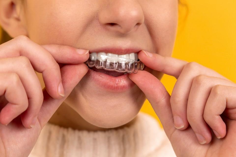 Abcesul dentar - simptome, cauze și tratament